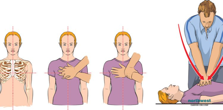 A diagram showing how does CPR work