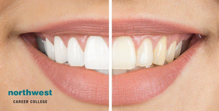 before and after Tooth Whitening